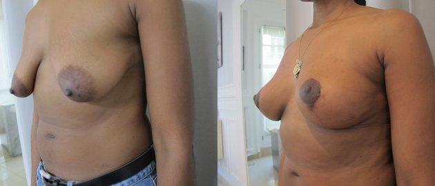 photo resultat implant mammaire et ptose