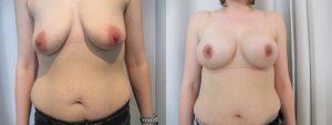 avant apres augmentation mammaire round block