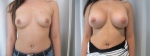 photo avant apres augmentation mammaire