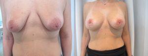 Augmentation mammaire avec cicatrice round block