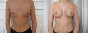 augmentation mammaire low cost paris