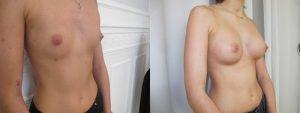 prix implant mammaire low cost paris