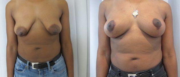 photo ptose mammaire avant apres