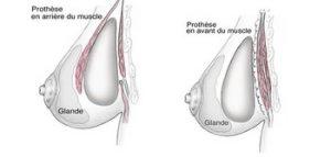 Photo position implant mammaire sous et derrière le muscle