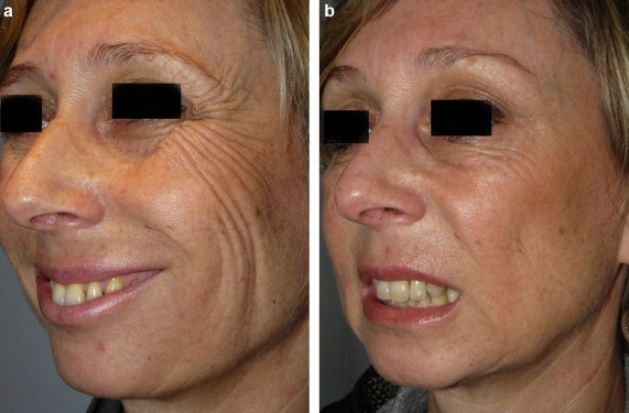 injections botox contre les rides d 39 expression du visage et du front. Black Bedroom Furniture Sets. Home Design Ideas