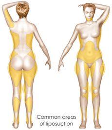 liposuccion de la graisse pour injection par lipofilling (ventre, cuisses, hanches ...)